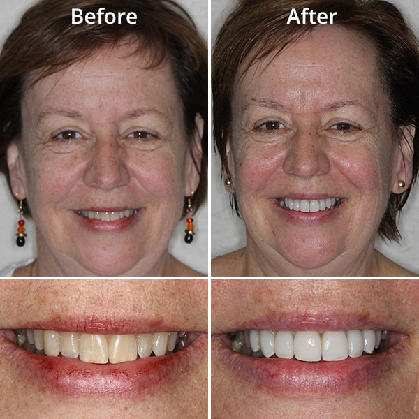 One of our cosmetic dentistry patients showing her smile before and after treatment