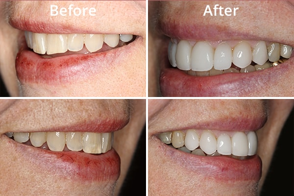 Close-up of before and after a patient's cosmetic treatment