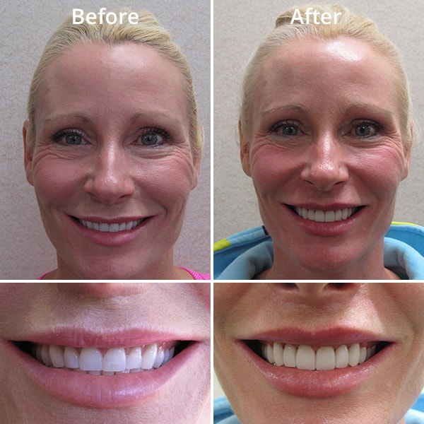 An example of the impact of cosmetic dentistry on a patient's smile
