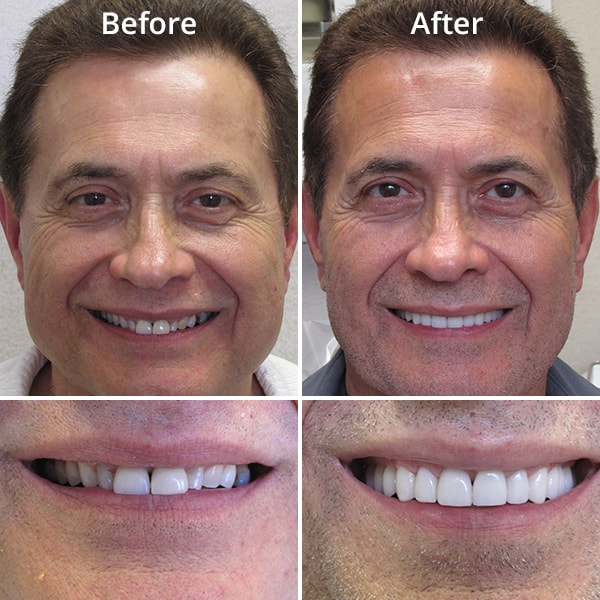 Before and after shots of our cosmetic dentistry patient