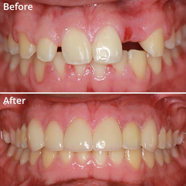 Before and after images of a smile after cosmetic dentistry