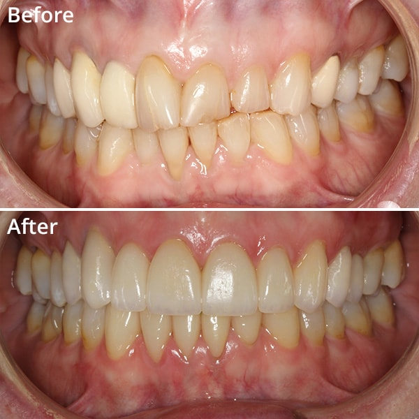 One of cosmetic dentistry patients comparing their before and after images